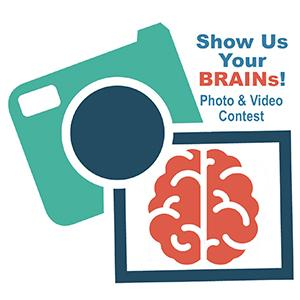 Illustrative camera icon with a photo of a brain.